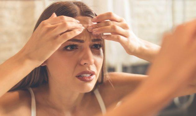 Tips para eliminar las marcas de acné de forma natural